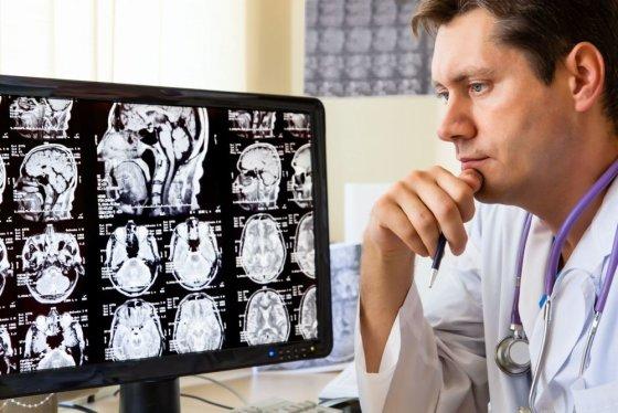 123rf.com nuotr./Daktaras žiūri į galvos rentgeno nuotraukas